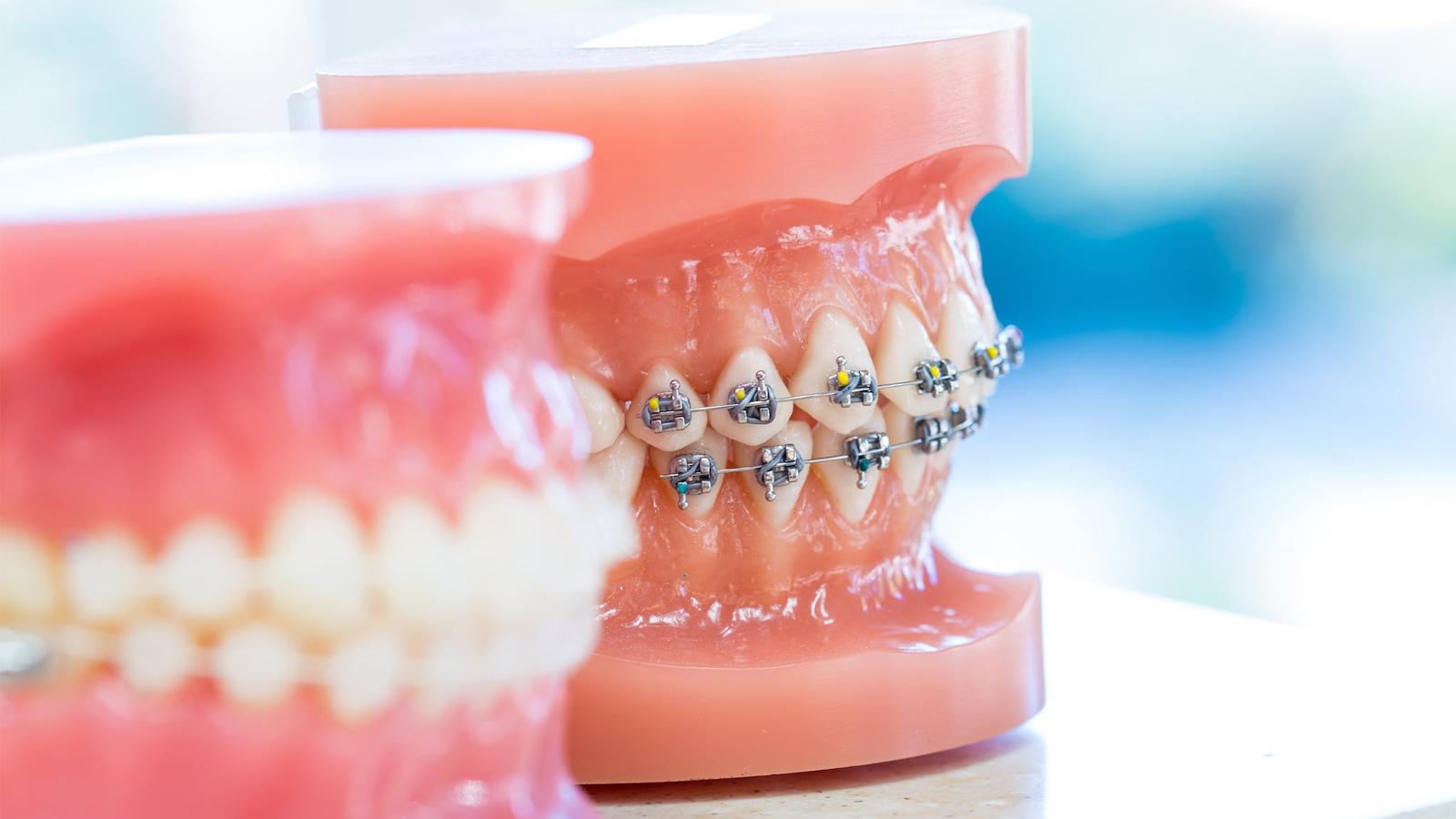 ارتودنتیست و دندانپزشک