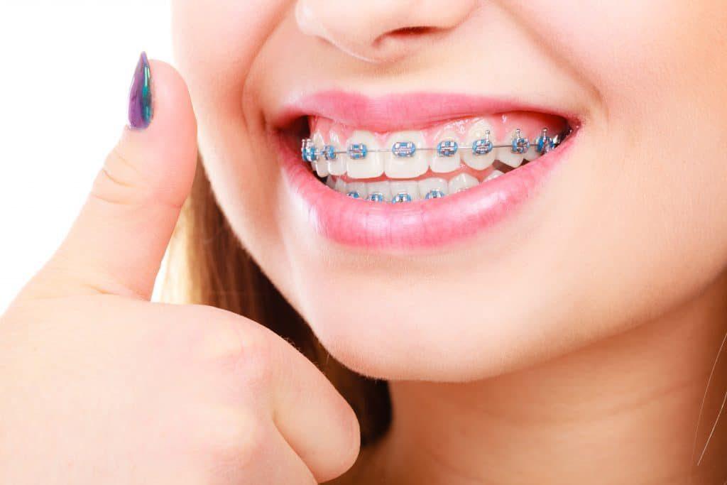 مراحل ارتودنسي دندان
