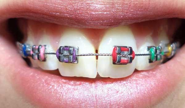 حدود قیمت ارتودنسی قیمت ارتودنسی ثابت قیمت اورتودنسی هزینه ارتودنسی دندان در زاهدان هزینه ارتودنسی فک بالا ارتودنسی فک بالا قیمت هزینه های ارتودنسی هزینه ارتودنسی دندان در سال 98 قیمت ارتودنسی فک بالا