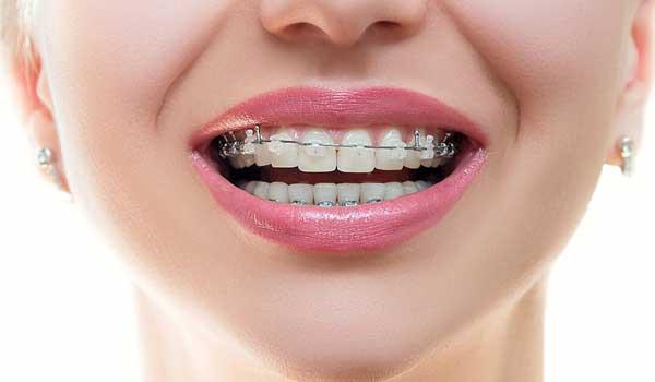 قيمت ارتودنسي قیمت ارتودنسی در همدان قیمت ارتدنسی متخصص ارتودنسی در زاهدان هزينه ارتودنسي هزینه ارتودنسی فک بالا و پایین ارتودنسی دندان هزینه ارتودنسی هزینه قيمت ارتودنسي دندان
