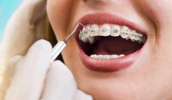 حداقل هزینه ارتودنسی قیمت ارتودنسی هزینه ارتودنسی هزینه ارتودنسی دندان ارتودنسی قیمت هزینه ارتودنسی دیمون قیمت ارتودنسی دندان هزینه تقریبی ارتودنسی
