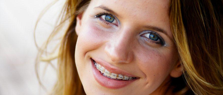 هزینه ارتودنسی (قیمت ارتودنسی) هزینه ارتودنسیدندان در سال 98 هزینه ارتودنسی دندان در سال ۹۸