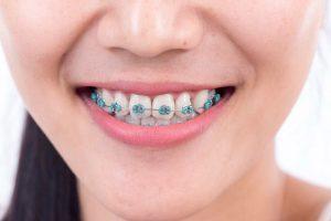 دلايل اصلي اثرگذار بر قيمت ارتودنسي دندان