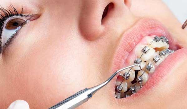 مراحل ارتودنسی ثابت معاینه دندان قیمت عکس opg دندان ارتودنسی نیم فک چیست مراحل ارتودنسي