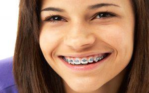 هزینه ارتودنسی دندان