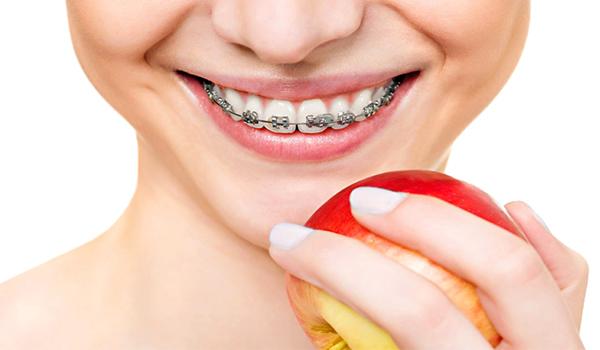 سیم کشی دندان ایا سیم کشی دندان درد دارد