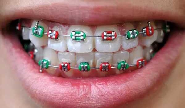 عوارضارتودنسی دندان فیلمارتودنسی دندان مراحلارتودنسی دندانبا عکس