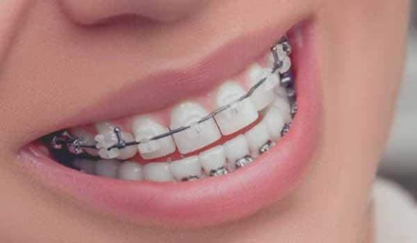 فیلمارتودنسی دندانهای جلو آیاارتودنسی دنداندرد دارد ارتودنسی دندانکودکان