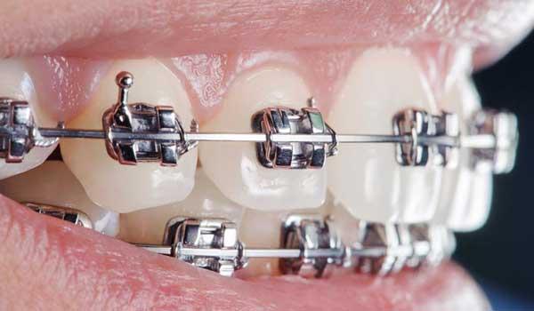 هزینهارتودنسی دندان چیست فیلمارتودنسی دندان مدت زمانارتودنسی دندان