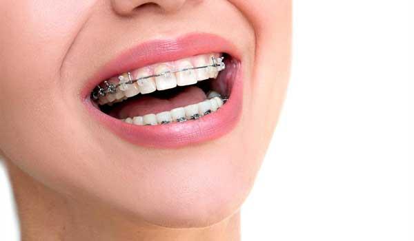 پلاکتارتودنسی چیست فیلمارتودنسی دندانهای جلو لمینتدندان چیست ایمپلنتچیست ارتودنسی درد دارد