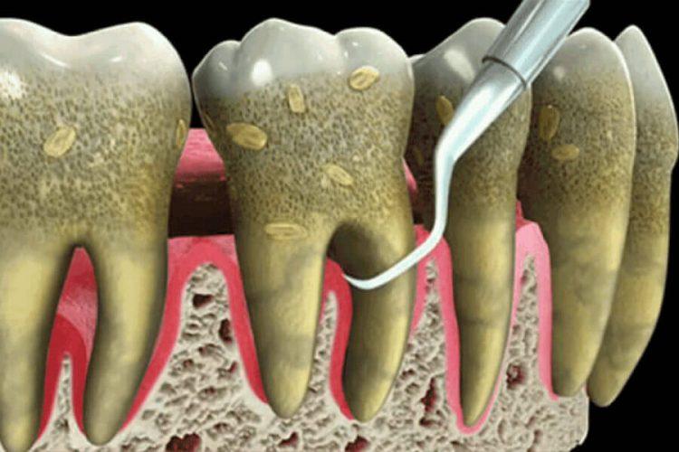 درمان عفونت دندان با مترونیدازول و اموکسی سیلین سردرد ناشی از عفونت دندان قرص چرک خشک کن قوی برای عفونت دندان خواص نشاسته برای عفونت دندان