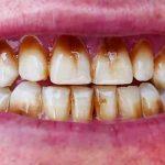 سیاه شدن بین دو دندان