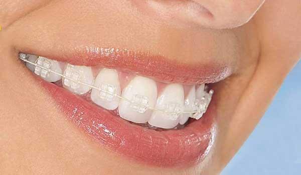 ارتودنسی فلزی هزینه ارتودنسی دندان کودکان
