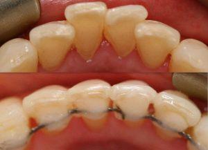 جابجایی دندان بدون ارتودنسی