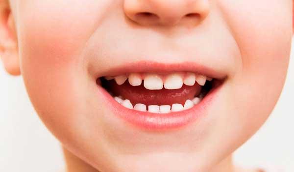 علت زرد شدن کامپوزیت دندان درمان زردی دندان با زردچوبه