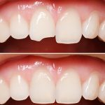 انواع روش های ترمیم دندان،