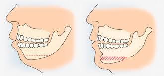 جراحی چانه | جراحی ژنیوپلاستی