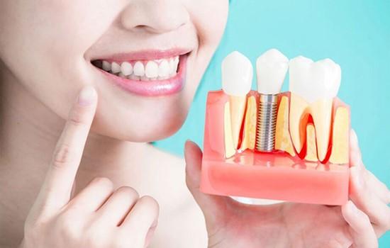 انواع کاشت دندان ثابت