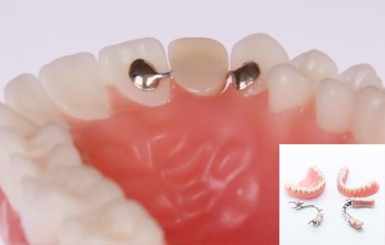 کاشت دندان مصنوعی
