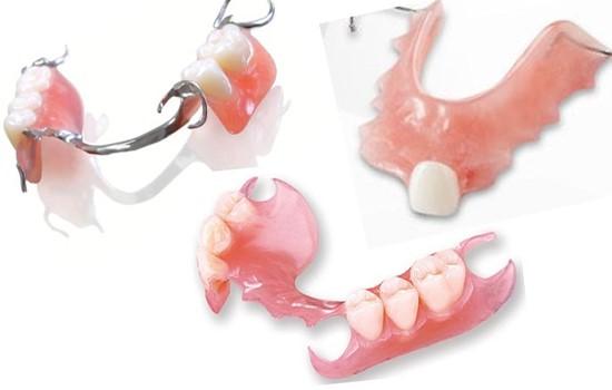 کاشت دندان مصنوعی نیمه ثابت