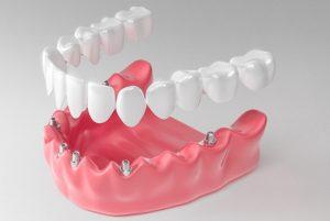 انواع پروتز دندانی