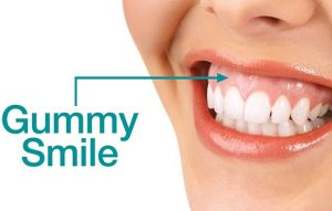 لبخند لثه ای (به انگلیسی: Gummy Smile)