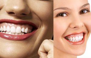 اصلاح و درمان لبخند لثه ای