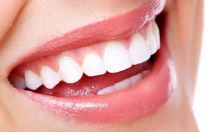 درمان لبخند لثه ای یا ژنژیوکتومی