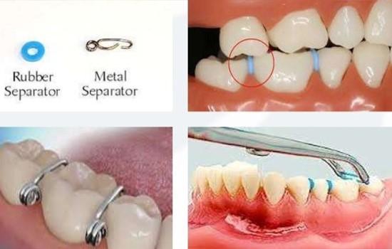 نحوه قرار دادن جداکننده ارتودنسی در بین دندانها