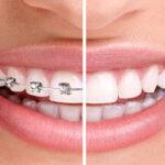 لمینت دندان بهتر است یا