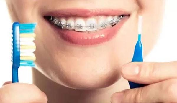 عوامل ایجاد پوسیدگی دندان بعد از ارتودنسی